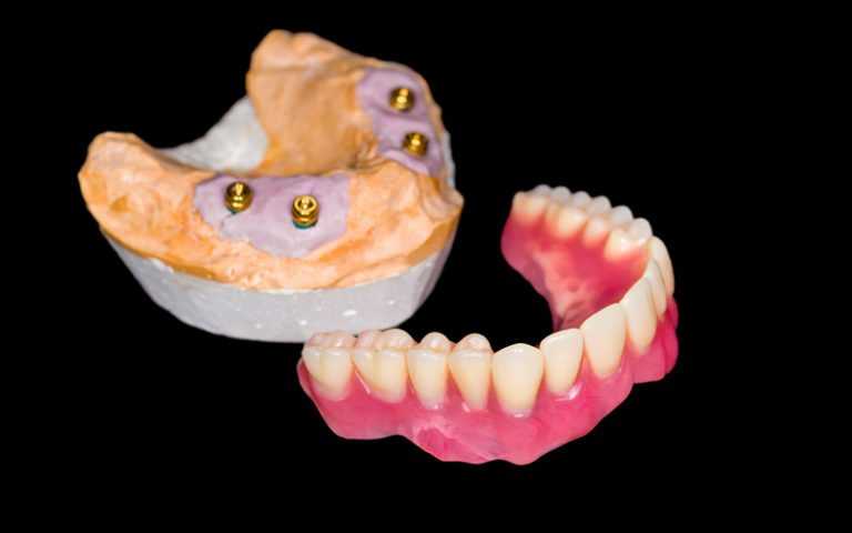 tooth replacement options dentures and implants