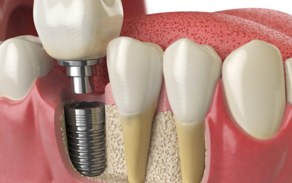 Rendering of dental implants with post revealed