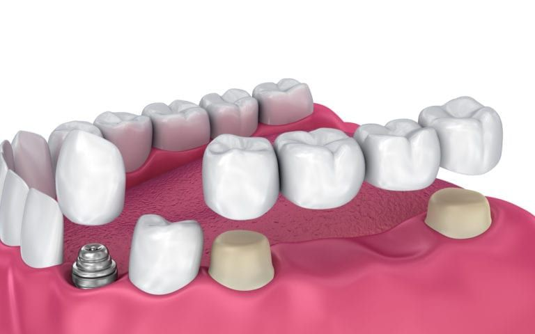 Dental Restoration Types
