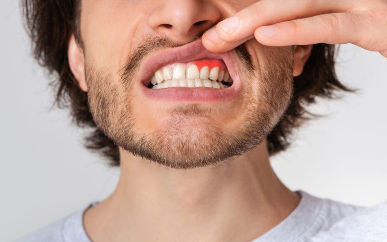 Man lifting lip to reveal gum disease
